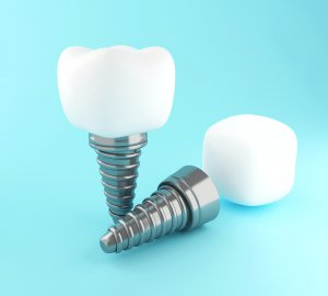 3d Dental tooth implant.